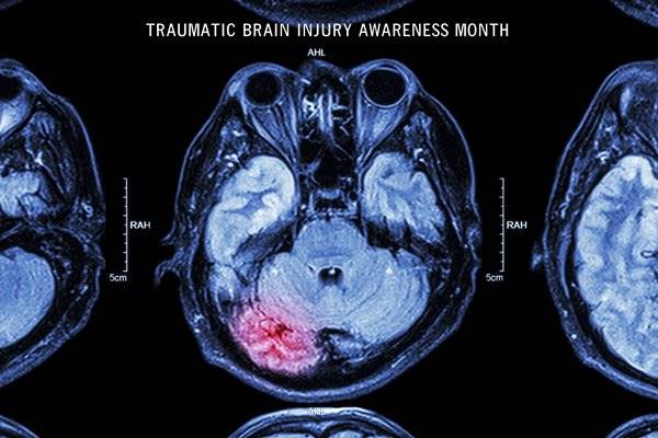 March is Traumatic Brain Injury Month